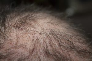 Image shows thinning hair which happens in both men and women