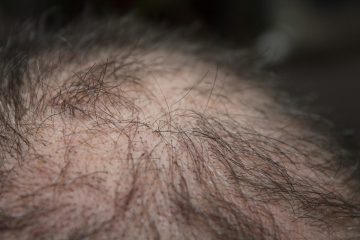 Image shows thinnig hair which happens in both men and women