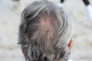 Man's back of head picture showing thinning hair and hair loss